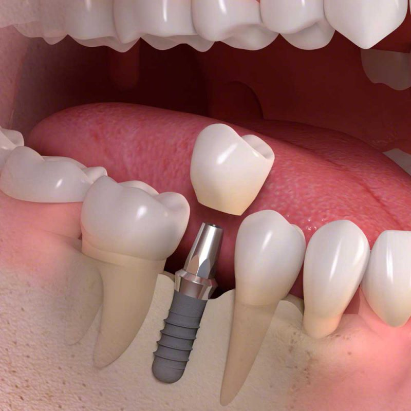 High quality dental implants Albany Dental Bexhill East Sussex