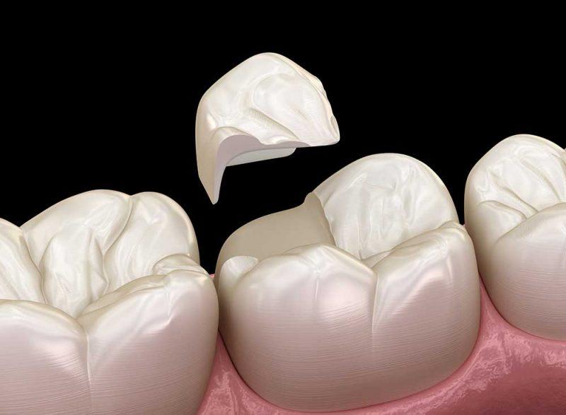Broken Crowns & Broken Dentures