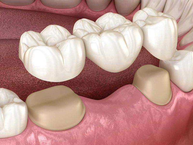 Dental Bridges East Sussex