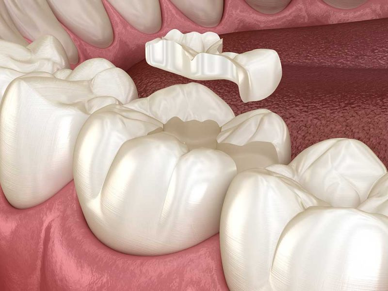Dental Onlays in East Sussex