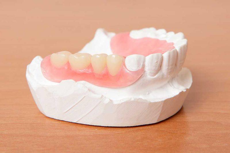 Dentures dental treatment East Sussex