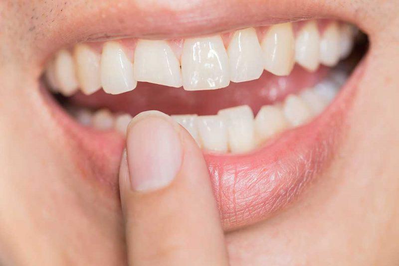 Dental Problems - Fractured or broken teeth treatment