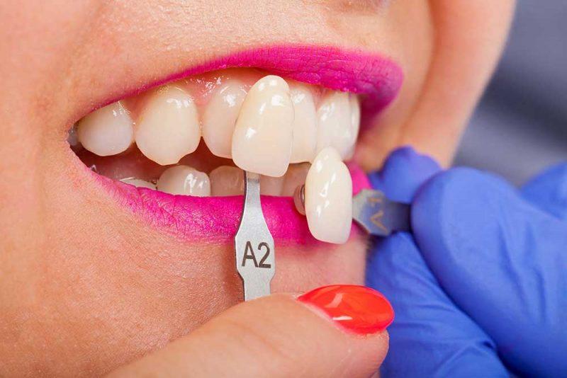 Porcelain Dental Veneers East Sussex