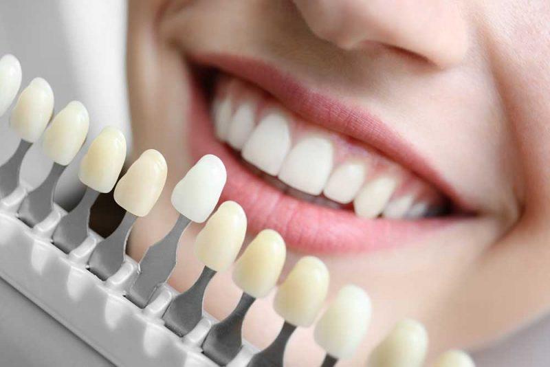 Temporary Dental Veneers East Sussex